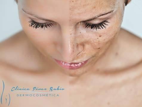 manchas faciales en cáceres