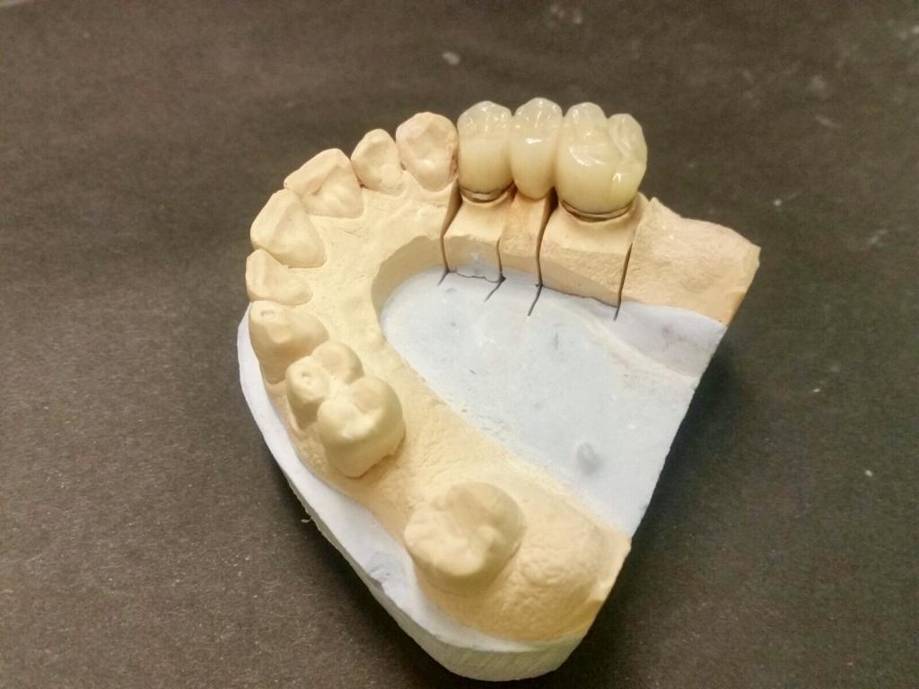 protesis dientes, aldiente, coromas sobre implantes palencia, coronas sobre implantes palencia