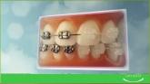 Implantologia en el retiro