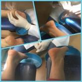 ortopodologia en motril, cirugia podal en motril, podologia deportiva en motril