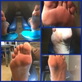 plantillas para pies en motril, quitar espiculas en motril, hongos en las uñas del pie