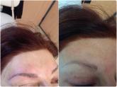remodelación del ovalo facial en motril, centros de estetica en motril, esteticas en motril,