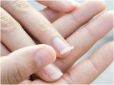 uñas para novias en motril, tratamientos de durezas en motril, tratamientos de callos en motril,