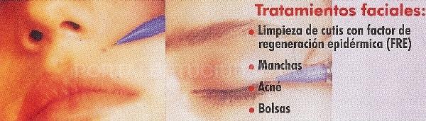 UVA en Boadilla, bionergética en Boadilla del Monte, micropigmentación en Boadilla