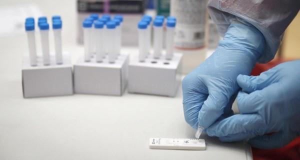 Ampliamos los test de antígenos a zonas básicas de salud sin restricciones