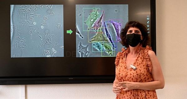 El Marañón desarrolla un programa que revoluciona el análisis de imágenes biomédicas