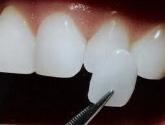clínica dental en Toledo,