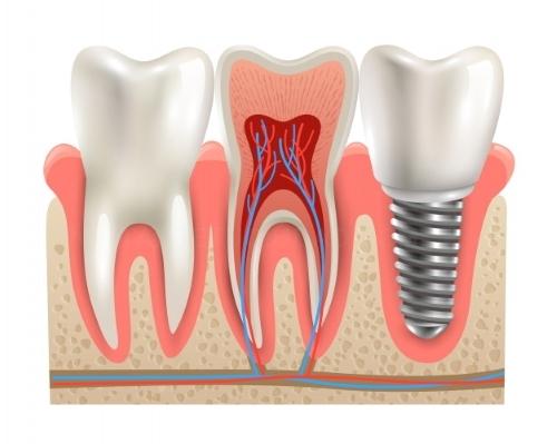 Ofertas dentales