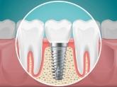 dentistas en Toledo, dentistas baratos enToledo