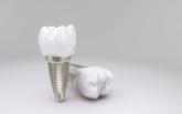 empastes en Toledo, Clínicas dentales