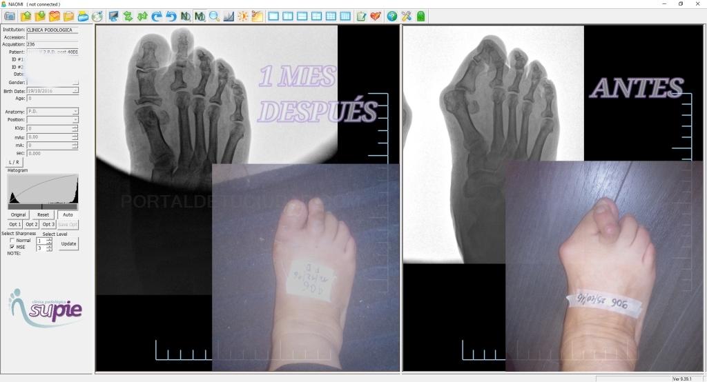 Experto cirujano del pie,uñas con hongos,cirugía de uñas del pie, Neuroma de morton