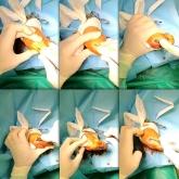 cirugía de uñas del pie,  Neuroma de morton