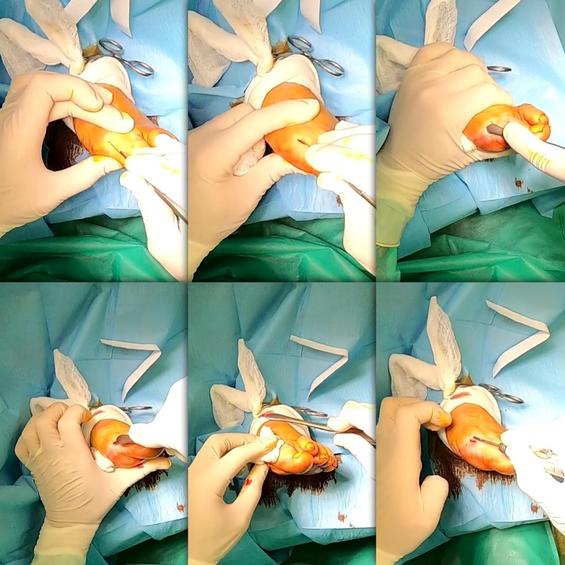 Cirugia de mínima incisión,cura del pie,tratamiento desmatologico del pie