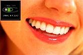 Estética dental, periodoncia, gingivitis, tratamiento de encias