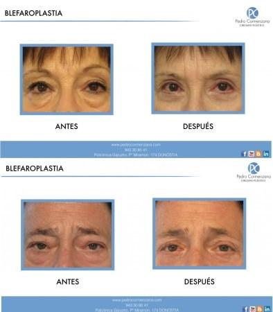 La cirugía estética es cada vez más frecuente en las personas mayores de 50 años