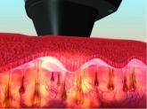 tratamientos de depilación en alacuas