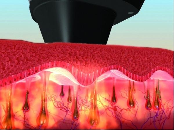 ESTETIC -  LASER, Centro especializado en depilación láser