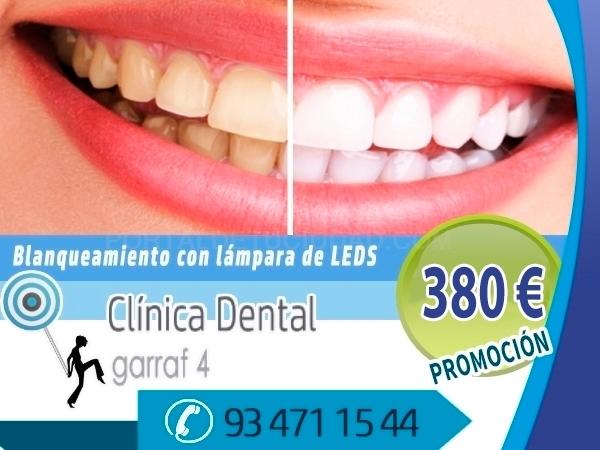 centro de odontologia cornella baix llobregat, ortodoncia invisible cornella baix llobregat,