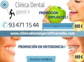implantes baratos cornella baix llobregat, neteja dental cornella baix llobregat,
