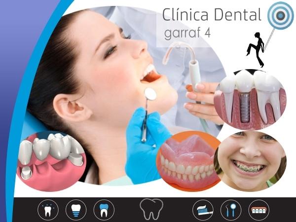 oferta empastes cornella baix llobregat, clinica dental abierta sabados cornella baix llobregat,