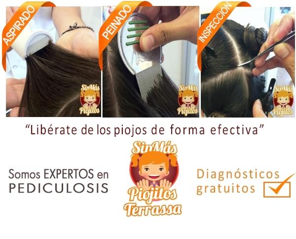 peluquería de piojos en Sant Quirze del Valles