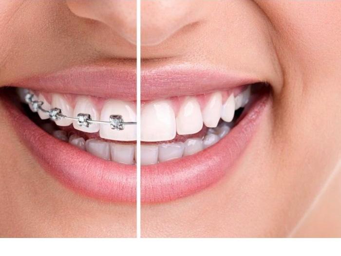 ortodóncia clínica dental en L'Hospitalet de Llobregat