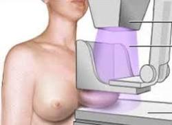Casi 5.000 extremeñas se someterán a mamografías en julio dentro del Programa de Detección Precoz del Cáncer de Mama