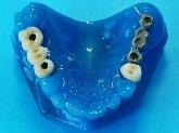 laboratorios dentales en montequinto,laboratorios dentales en sevilla, laboratorios dentales