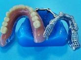 laboratorios dentales en dos hermanas, laboratorios dentales en sevilla, transporte gratis