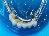 laboratorio dental en Dos Hermanas, protesicos dentales en montequinto