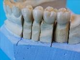 laboratorio dental en Sevilla, protesicos dentales en sevilla, protesicos dentales en dos hermanas