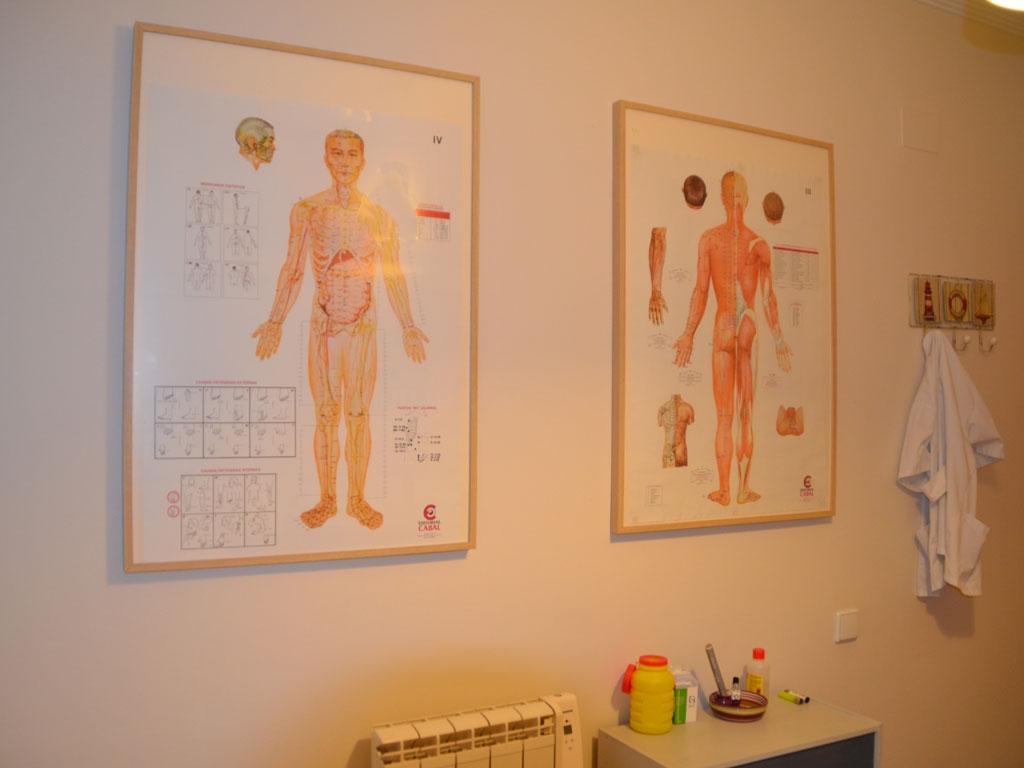 dejar de fumar con acupuntura en dos Hermanas, dejar de fumar con acupuntura en Sevilla