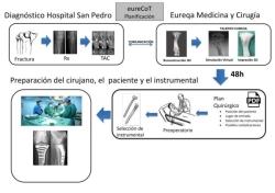 El complejo hospitalario universitario de Cáceres utiliza impresión 3D para replicar huesos y operar fracturas.