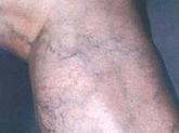 varicosidades en zona norte, araña vascular en alcobendas