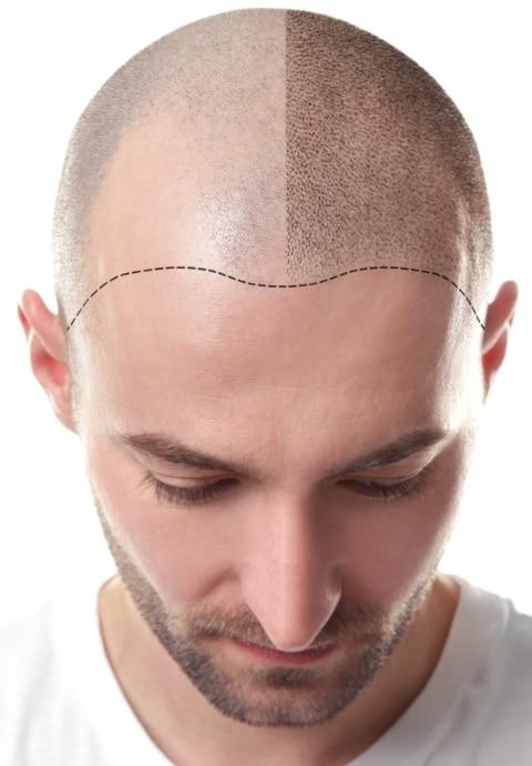 precio trasplante de pelo españa