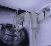 centro de especialidades dentales en san agustin del guadalix,  extraccion simple en sierra norte