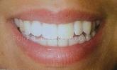 seguro dental asisa en sierra norte,  seguro dental adeslas en sierra norte