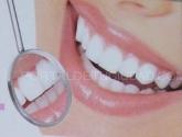 seguro dental dentyred en sierra norte,  seguro dental dentyred en san agustin del guadalix