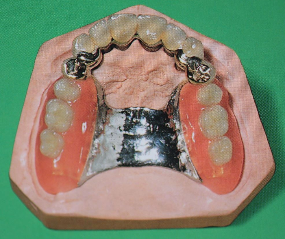prótesis removibles badajoz