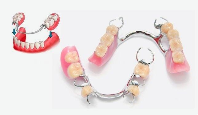prótesis dentales badajoz