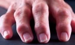 Artrosis: remedios contra el dolor y la inflamación
