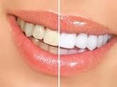 Laboratorios dentales, Dentistas