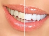 Dentista godella